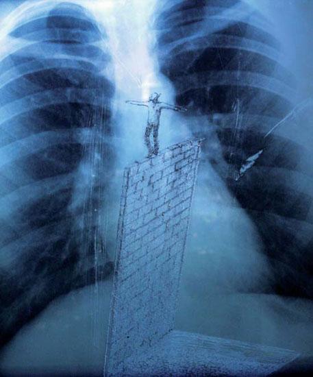 Inner Balance – Mixed/X-ray film (43 x 35.5 cm)