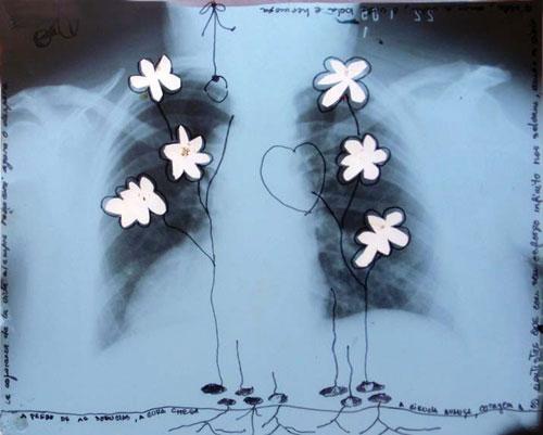 "- Image: ""Untitled"" - Lidia Sarmiento Garcia San Miguel - Mixed/X-ray film"